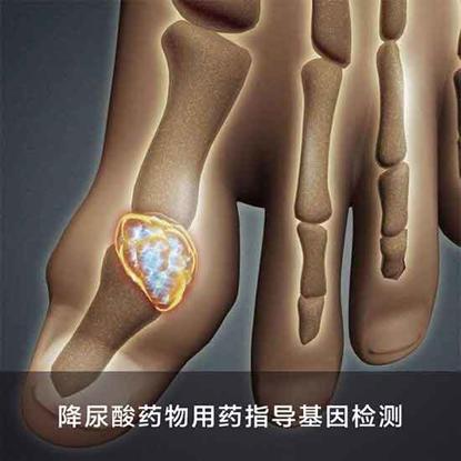 Picture of 降尿酸药物用药指导基因检测